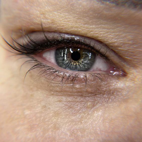 trattamenti-occhi-03